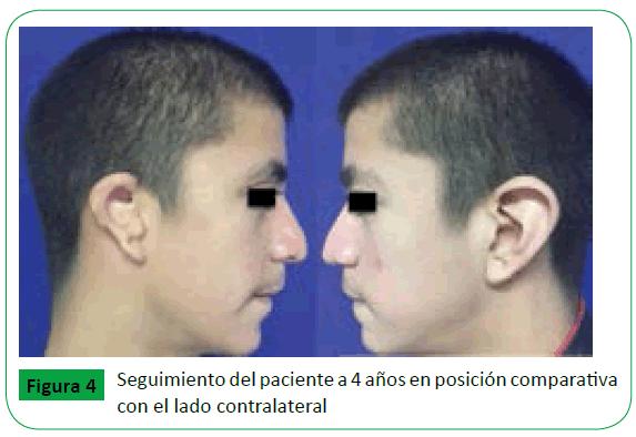archivosdemedicina-lado-contralateral
