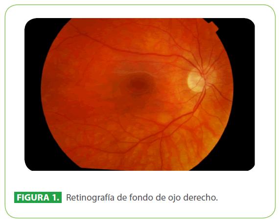 archivosdemedicina-ojo-derecho