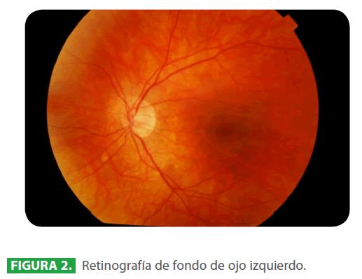 archivosdemedicina-ojo-izquierdo